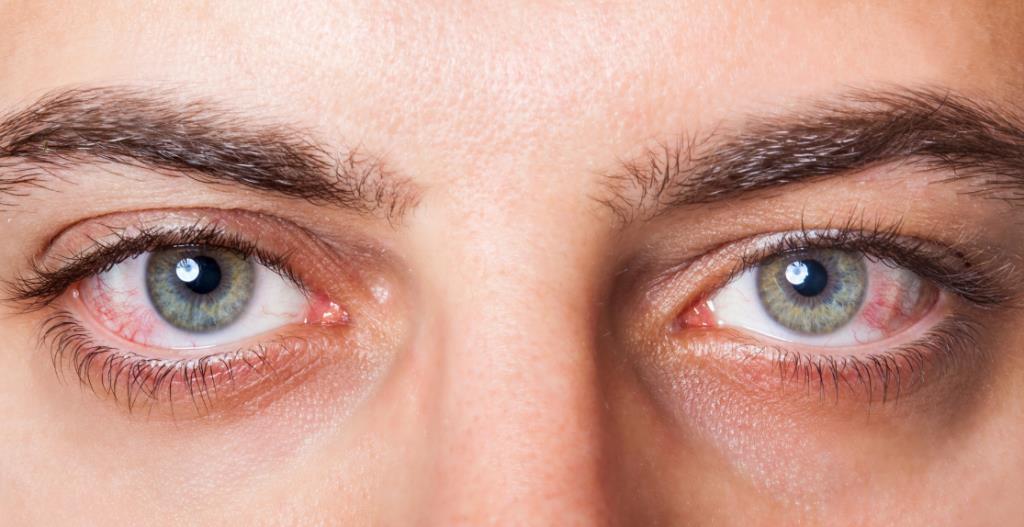 Крововилив в око: причини та симптоми