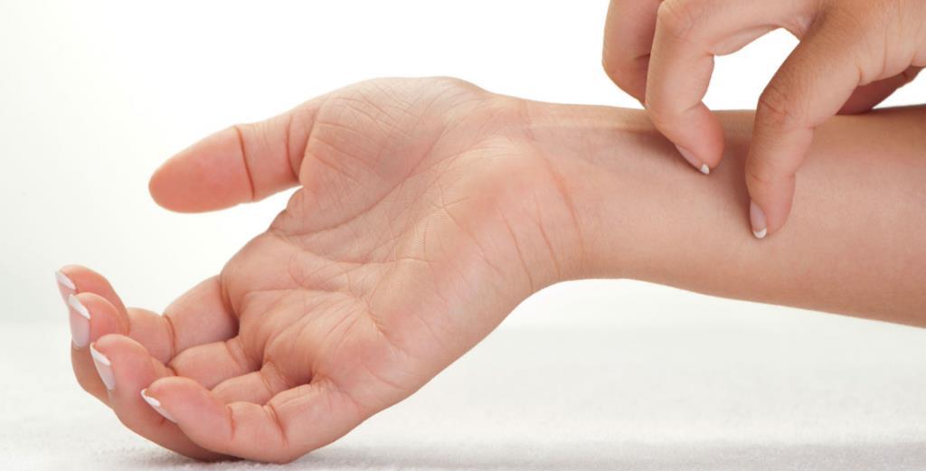 Що являє собою кандидоз на руках