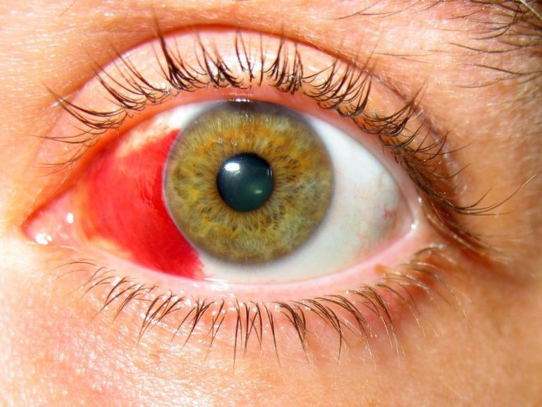Крововилив в око