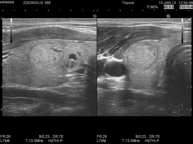 Аденома щитовидної залози на УЗД