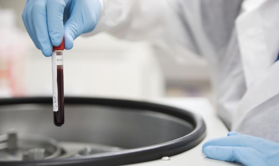 Гемофілія - лікування хвороби