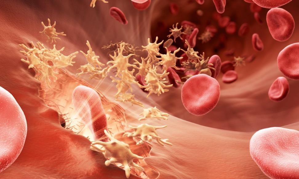 Гемофілія: симптоми, лікування у дітей