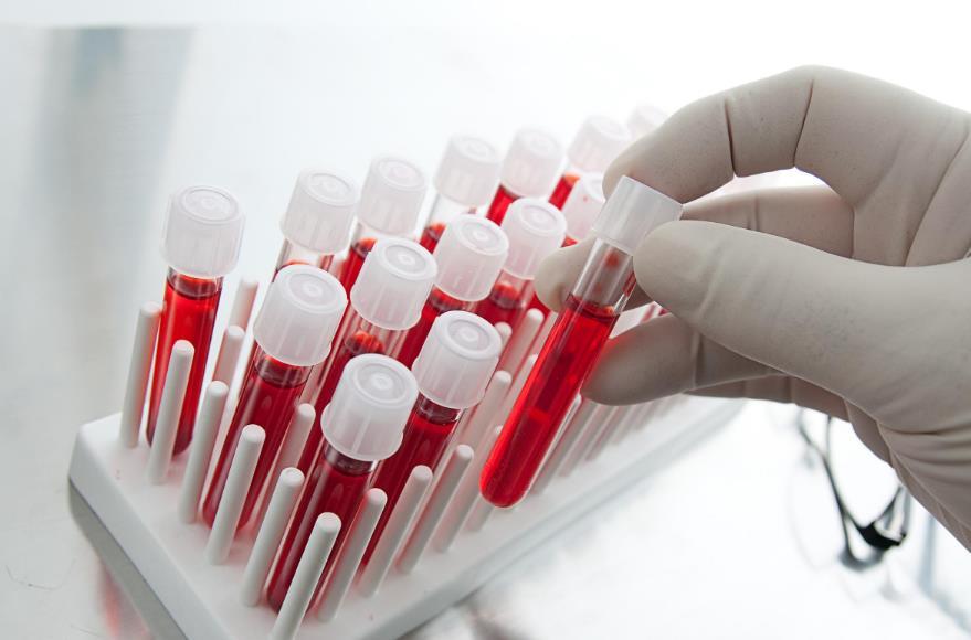 Лейкоз: як і чому розвивається рак крові?