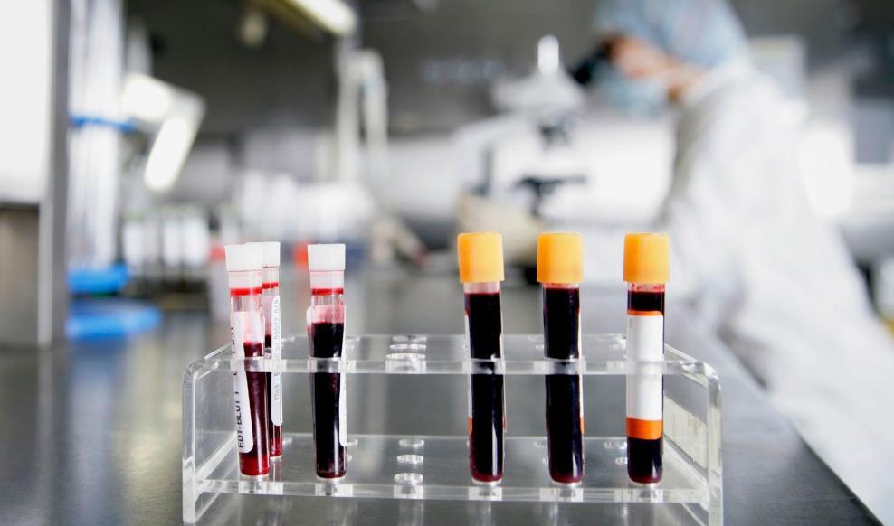 Рак крові – симптоми раку крові у дорослих