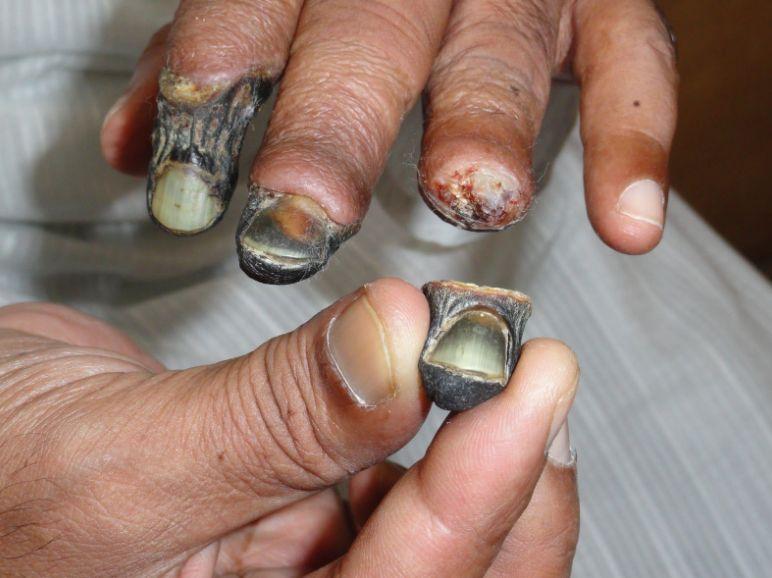 Гангрена пальців