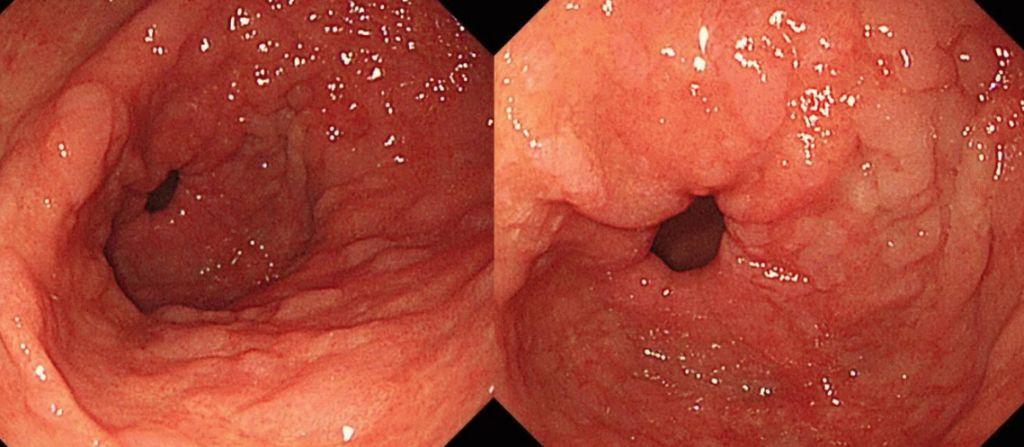 Патогенез хронічного гастриту