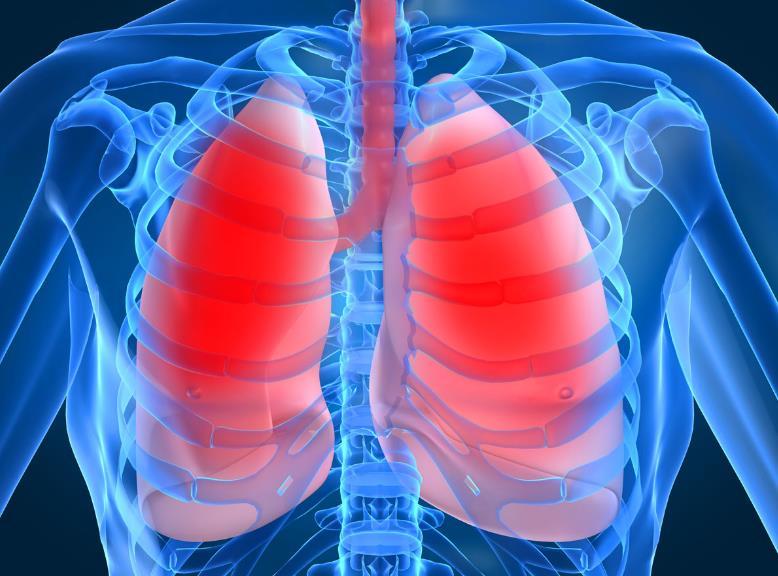 Пневмонія: класифікація, симптоми, особливості