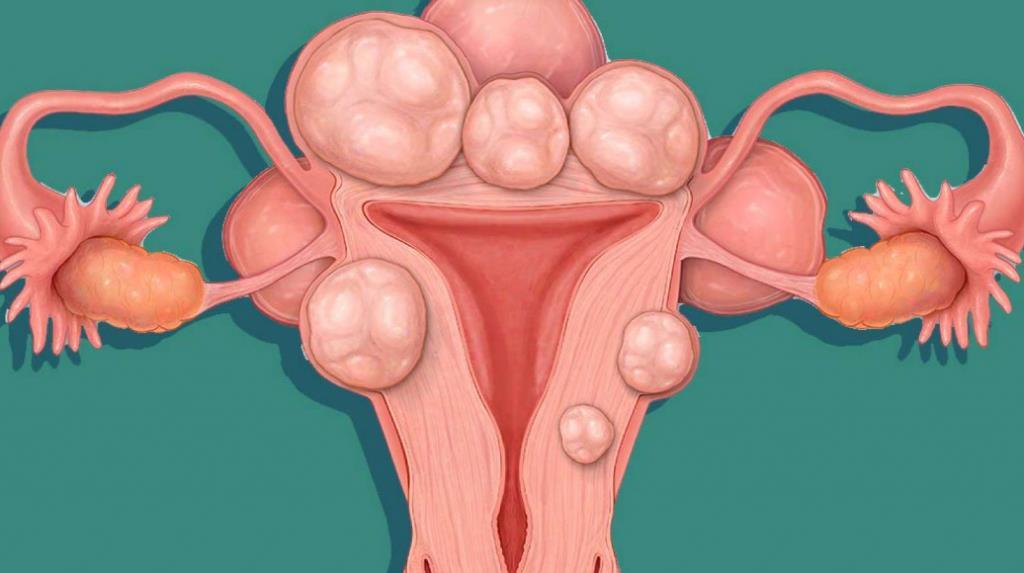Чим небезпечна міома матки і її причини