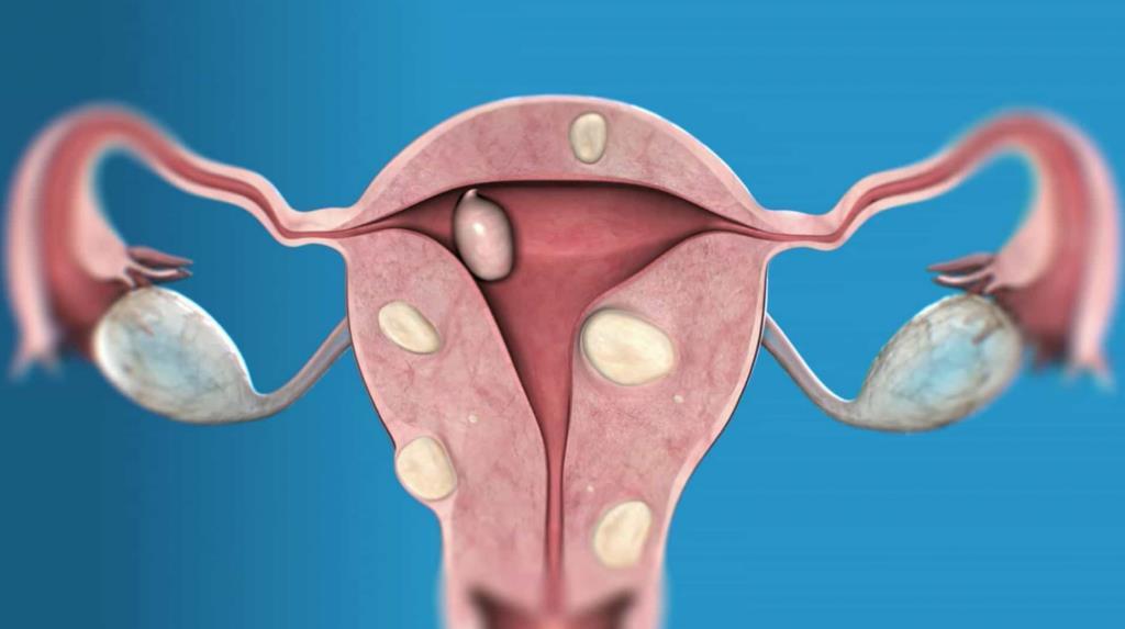 Розміри міоми матки для операції
