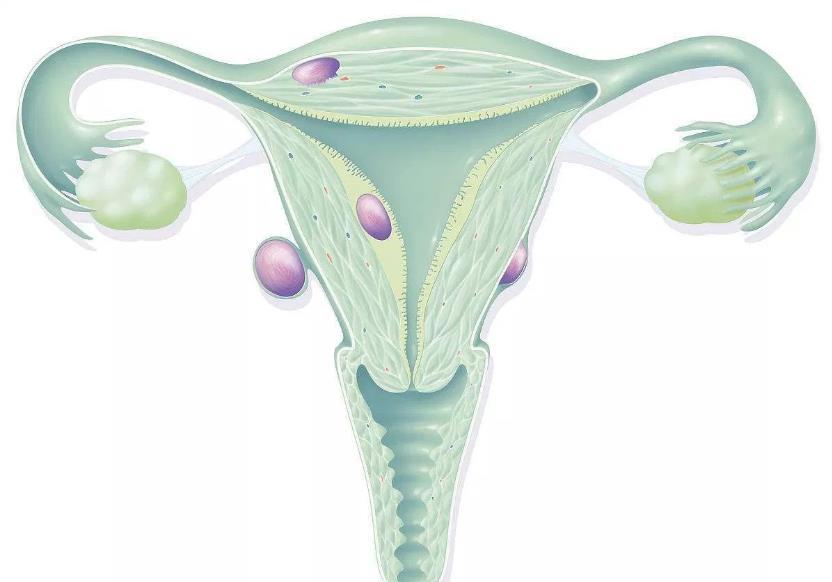 Міома тіла матки