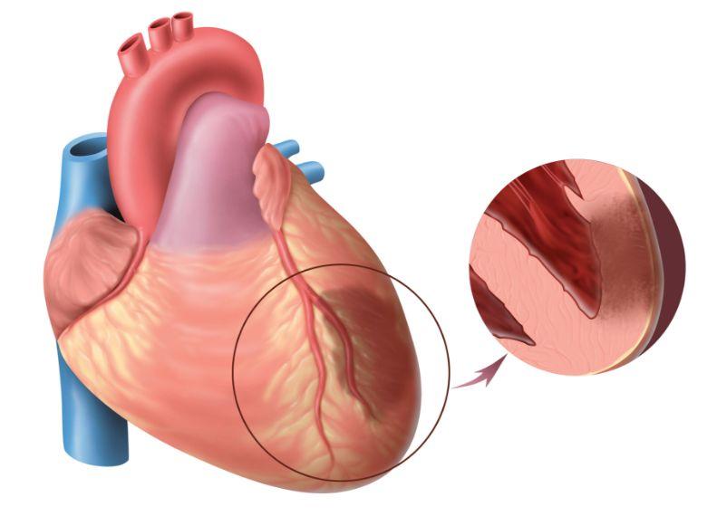 Як виглядає інфаркт міокарда