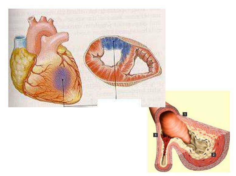 Перша допомога при інфаркті міокарда