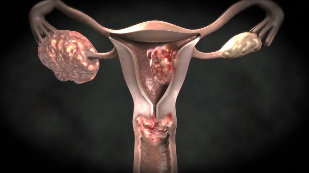 Чи можна попередити рак шийки матки
