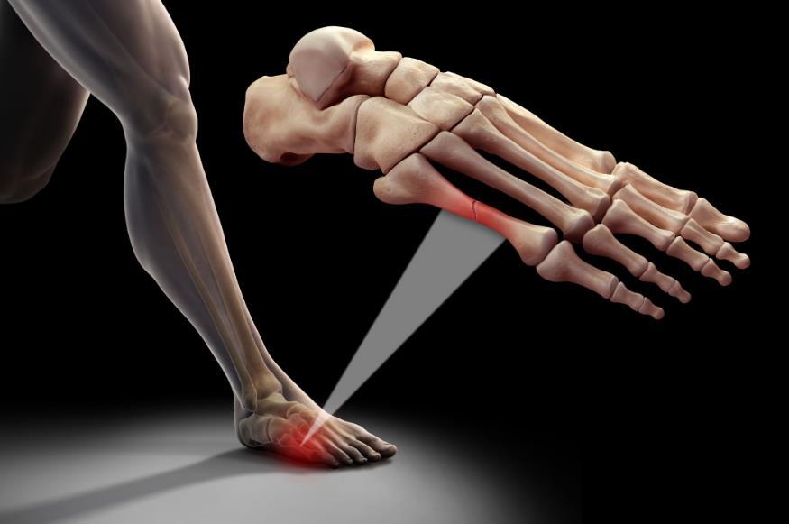 Перелом Джонса 5 плеснової кістки