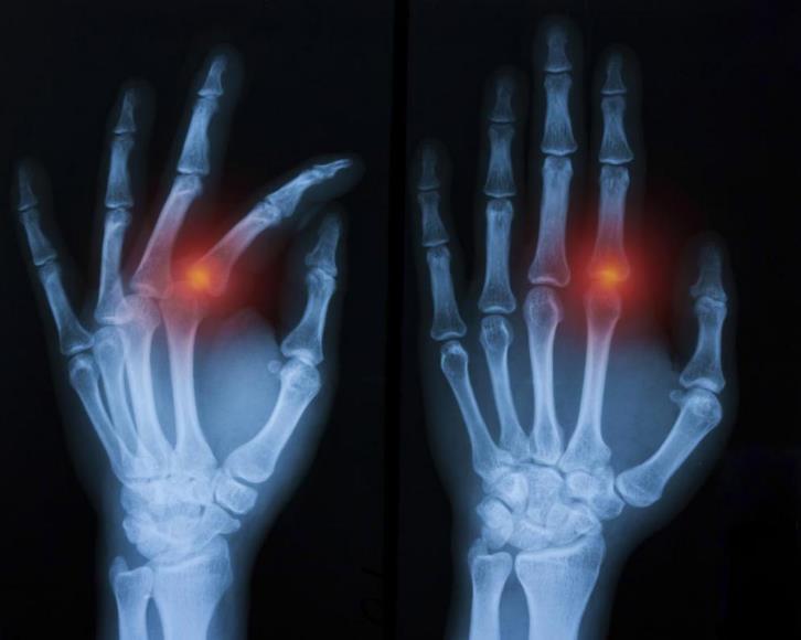 Перелом руки: симптоми, діагностика та особливості