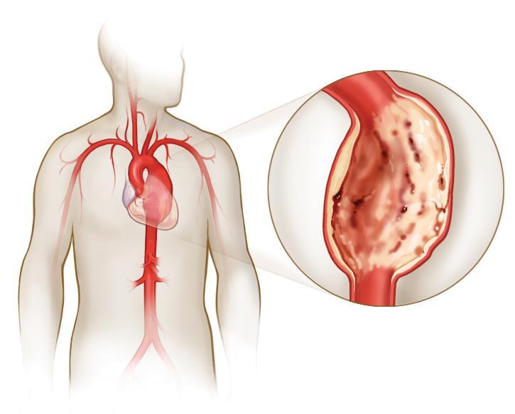 Аневризма: причини та методи лікування