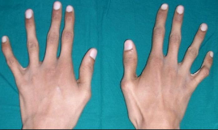 Ознаки, симптоми і лікування синдрому Марфана