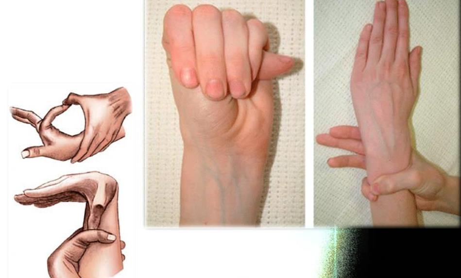 Синдром Марфана: ознаки, діагностика
