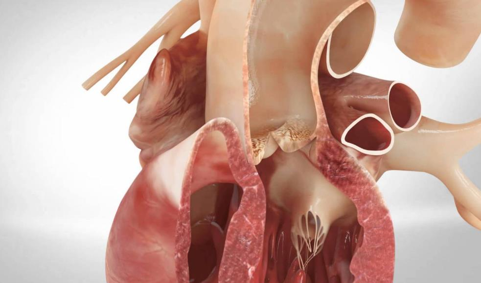 Стеноз аорти