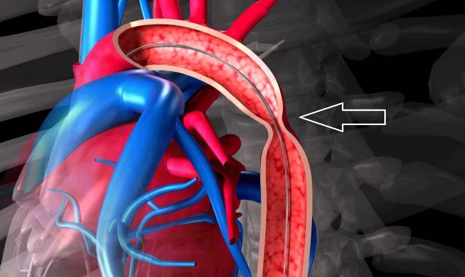 Коарктація аорти - лікування хвороби