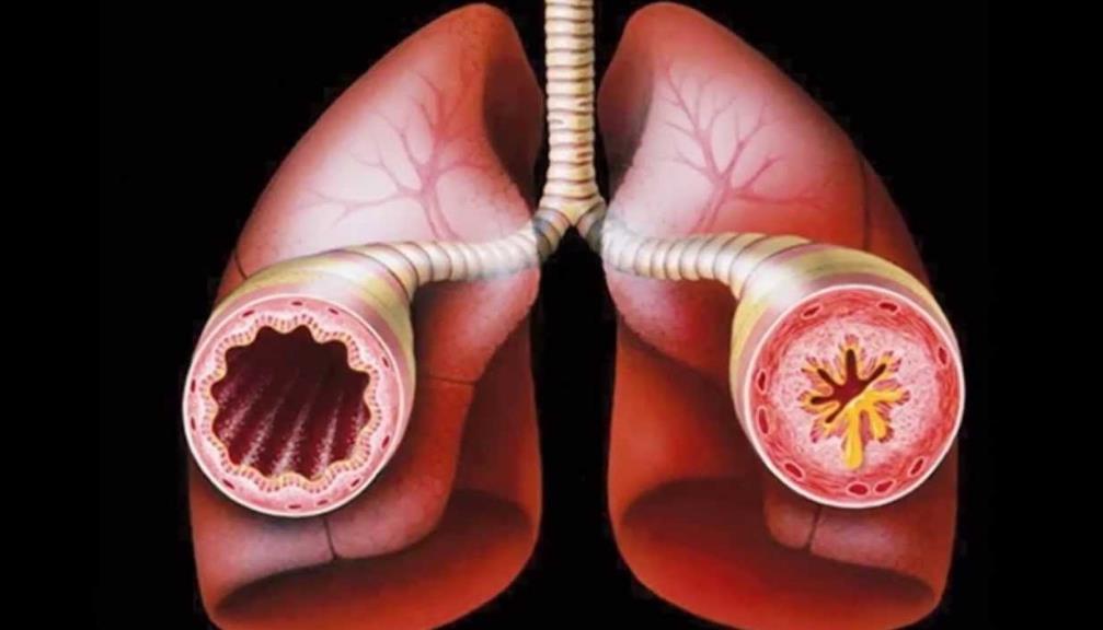 Бронхіальна астма: форми, лікування, симптоми