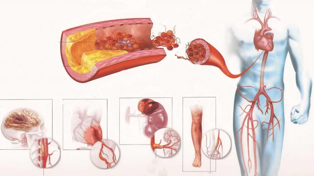 Атеросклероз судин серця і коронарних артерій