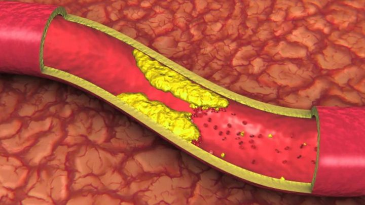 Атеросклероз аорти серця – що це таке?