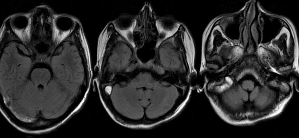 МРТ придаткових пазух носа