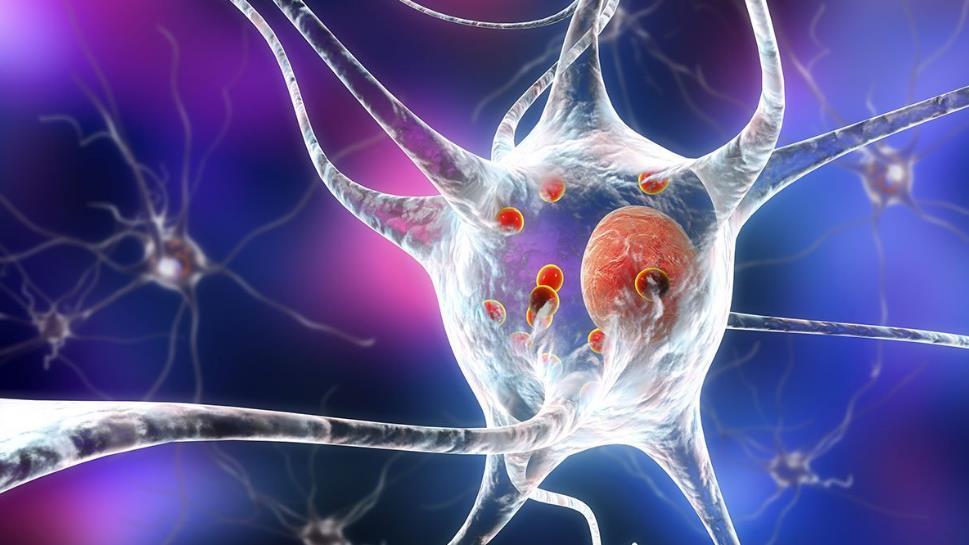 Хвороба Паркінсона – симптоми, лікування