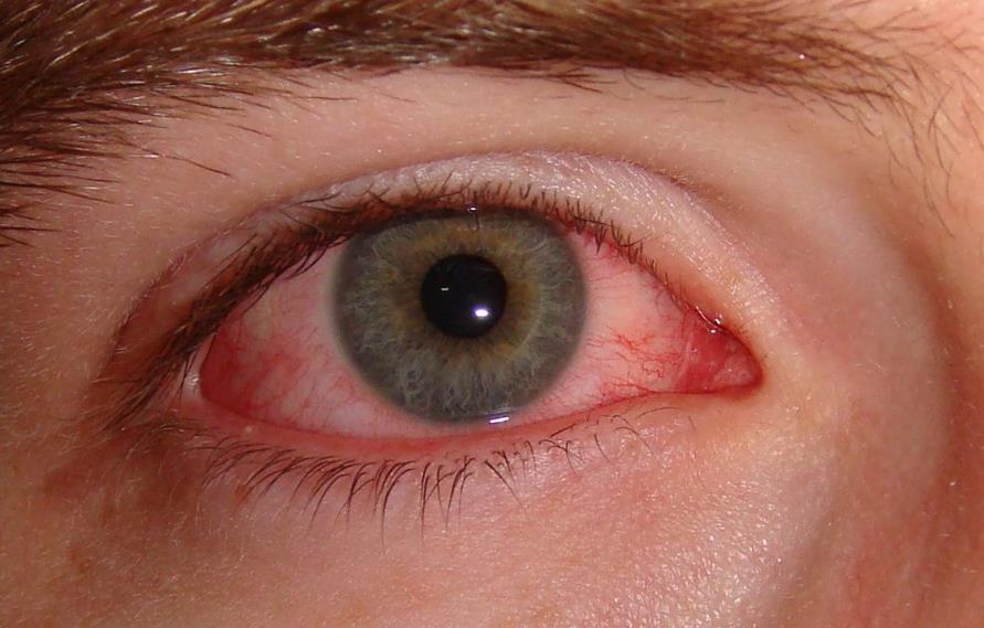 Субкон'юнктивальний крововилив в око