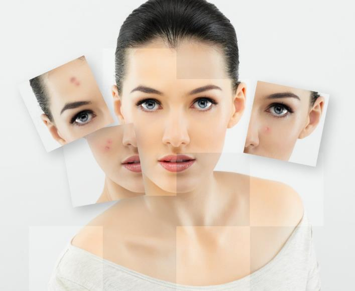 Прищі у людини: причини і лікування