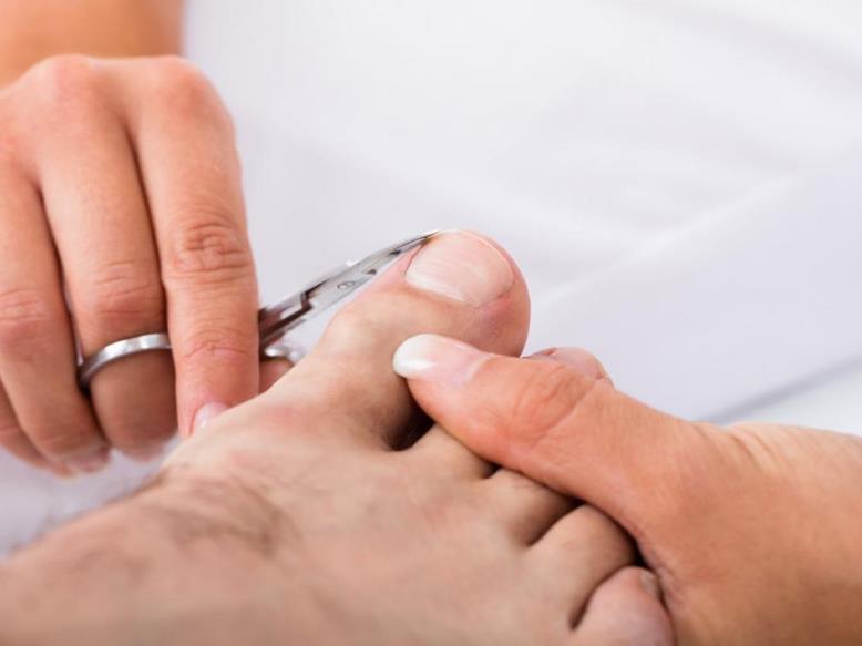 Врослий ніготь на великому пальці: як лікувати