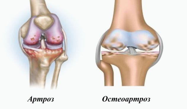 У чому відмінність між артрозом та остеоартрозом?