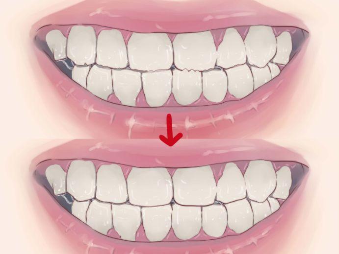 Чому виникає скрегіт зубами?