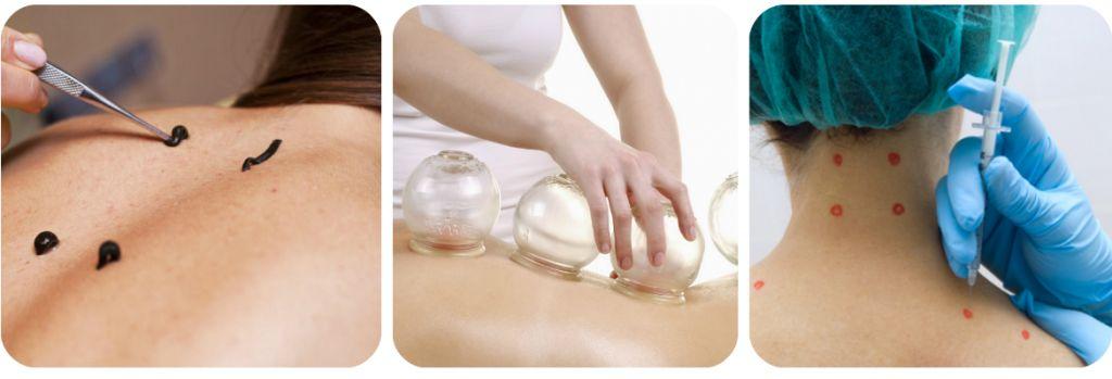 Шийний остеохондроз: 6 вправ проти запаморочень