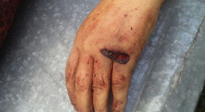 Вогнепальна рана: класифікація