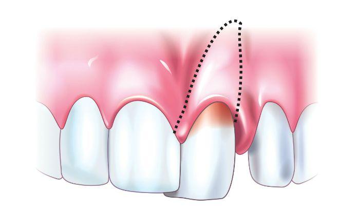 Вивих зуба: повний і неповний
