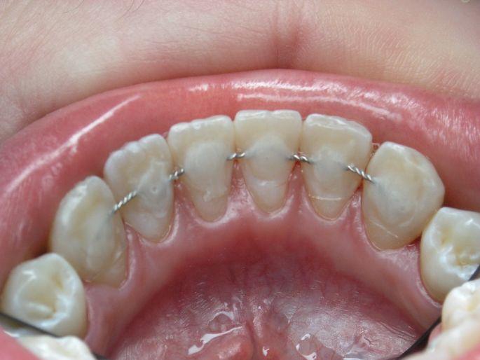 Лікування вивиху зубів