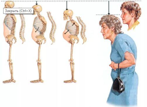 Остеопороз: симптоми, лікування