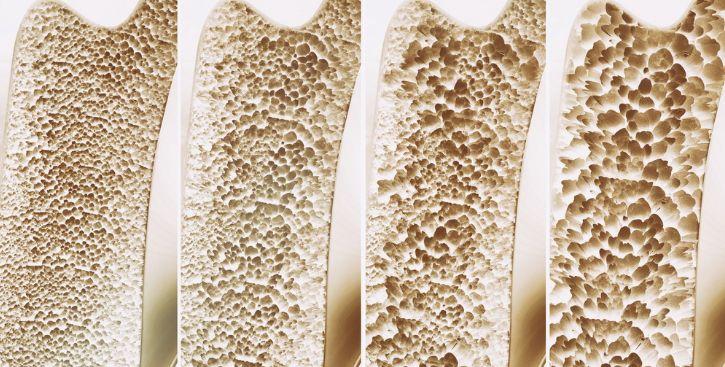 Що таке остеопороз?