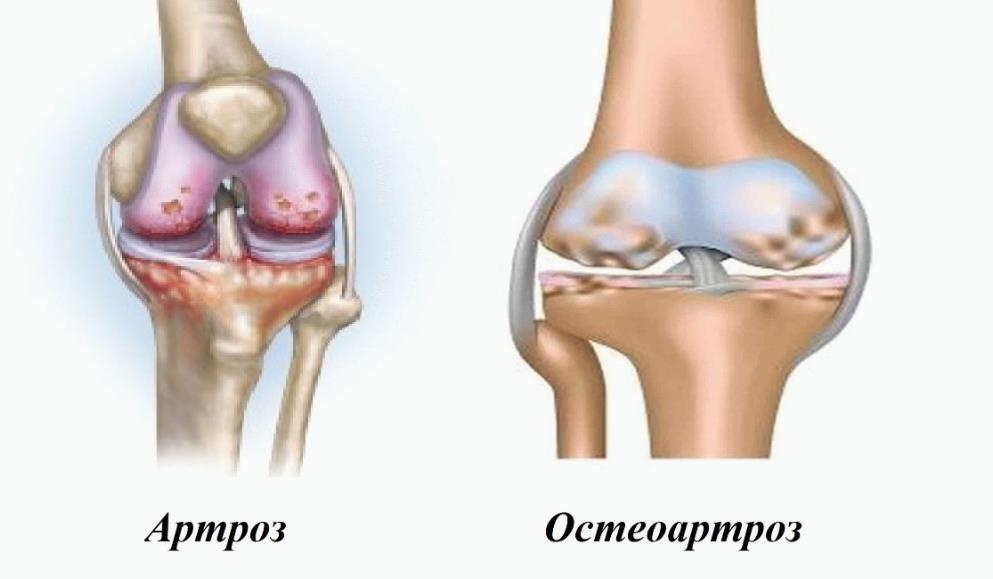 Артроз і остеоартроз: відмінність і схожість