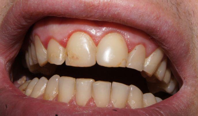 Вторинний карієс передніх зубів