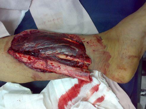 Відкритий перелом ноги