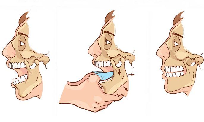 Вивих щелепи: симптоми і лікування