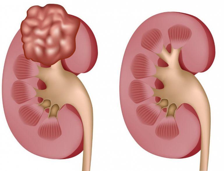 Полікістоз нирок: що це таке