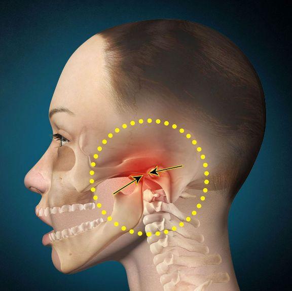 Лікування болів і травм щелеп