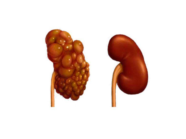 Полікістоз нирок: причини