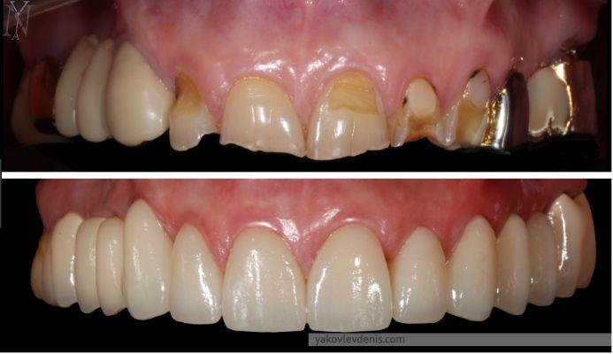 Комплексне відновлення зубних рядів