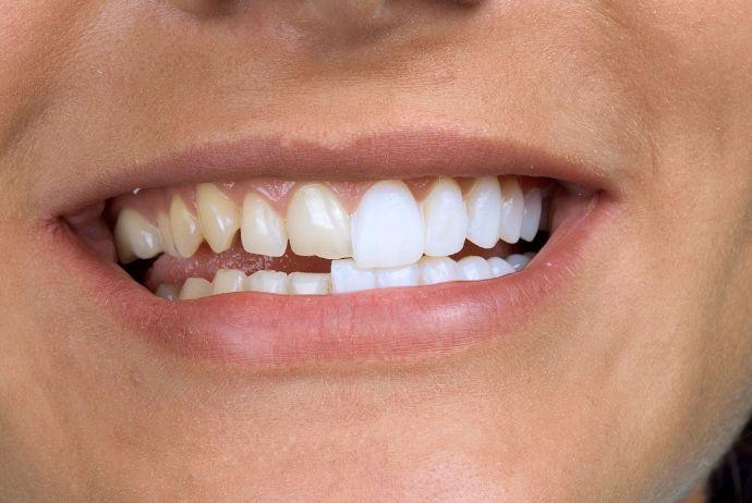Аномалії зубних рядів