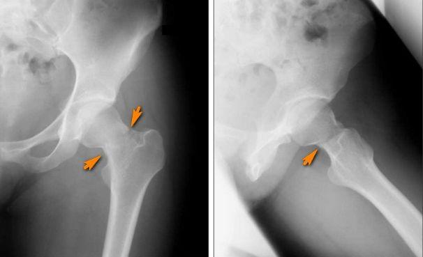 Перелом стегнової кістки